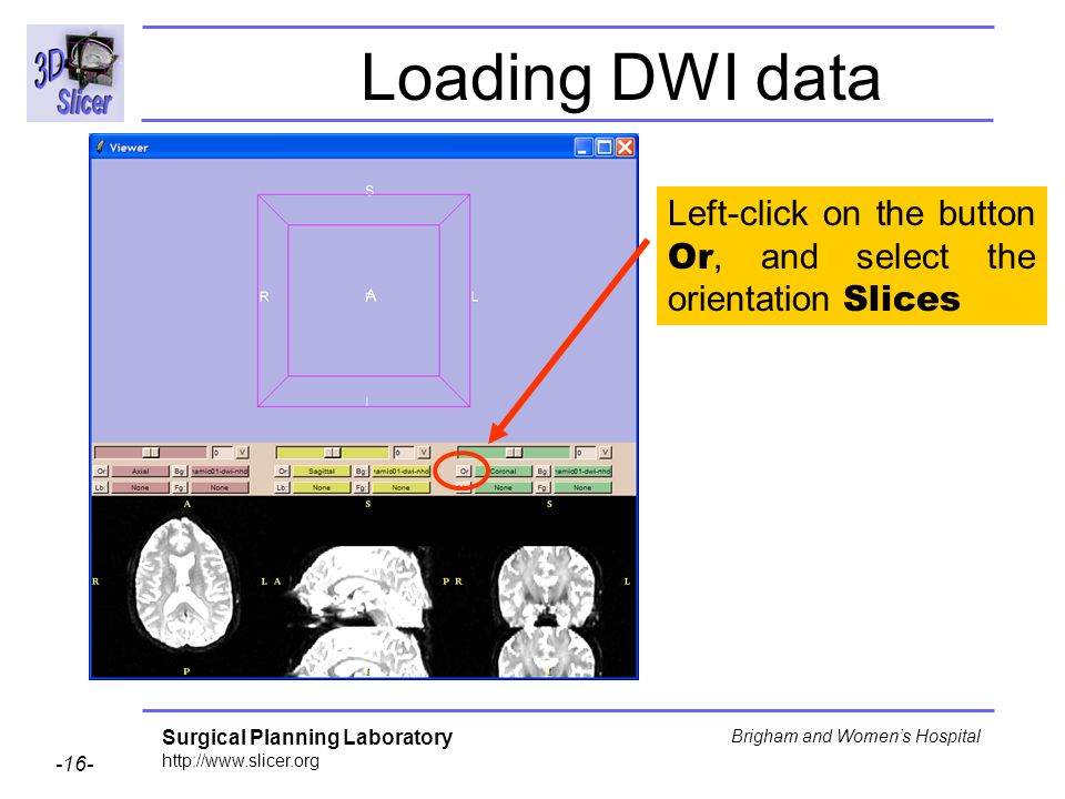 Surgical Planning Laboratory http://www.slicer.org -16- Brigham and Womens Hospital Loading DWI data Left-click on the button Or, and select the orientation Slices