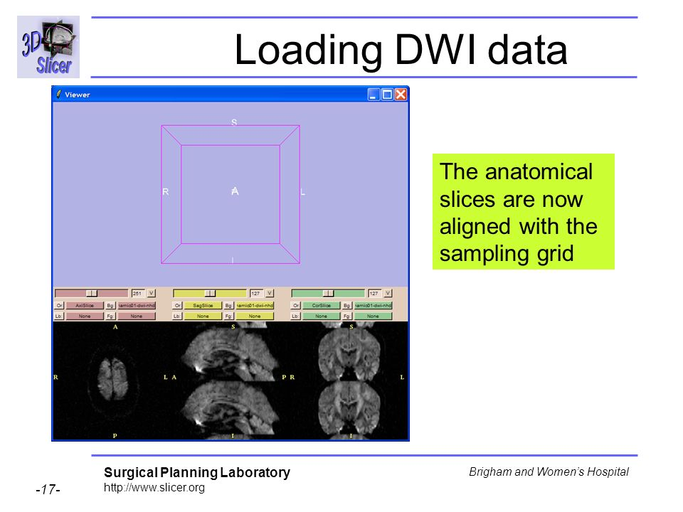 Surgical Planning Laboratory http://www.slicer.org -17- Brigham and Womens Hospital Loading DWI data The anatomical slices are now aligned with the sampling grid
