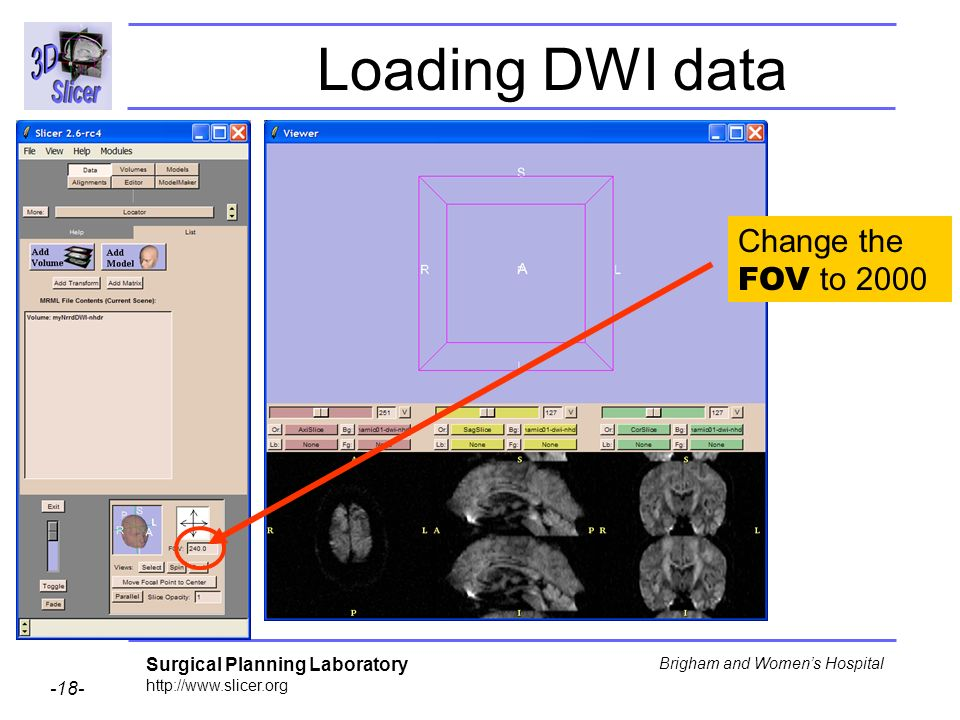 Surgical Planning Laboratory http://www.slicer.org -18- Brigham and Womens Hospital Loading DWI data Change the FOV to 2000