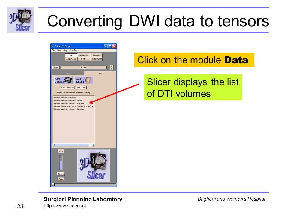 Surgical Planning Laboratory http://www.slicer.org -33- Brigham and Womens Hospital Converting DWI data to tensors Click on the module Data Slicer displays the list of DTI volumes