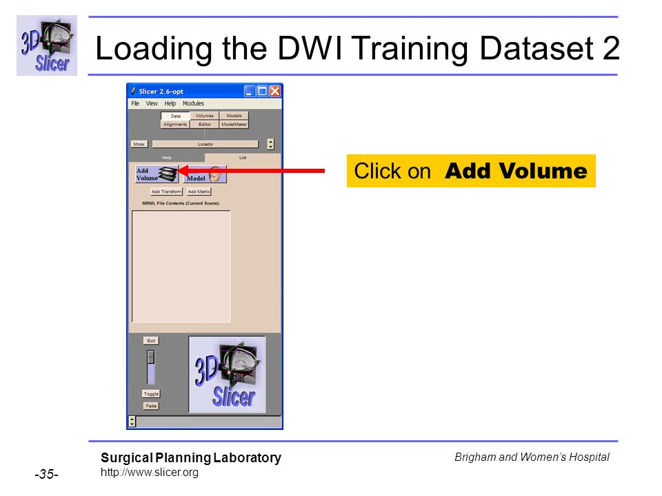 Surgical Planning Laboratory http://www.slicer.org -35- Brigham and Womens Hospital Loading the DWI Training Dataset 2 Click on Add Volume