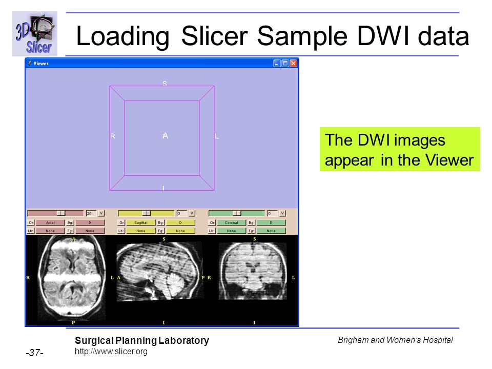 Surgical Planning Laboratory http://www.slicer.org -37- Brigham and Womens Hospital The DWI images appear in the Viewer Loading Slicer Sample DWI data