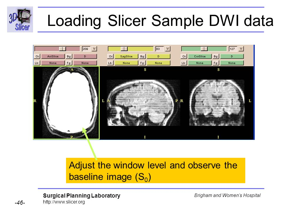 Surgical Planning Laboratory http://www.slicer.org -46- Brigham and Womens Hospital Loading Slicer Sample DWI data Adjust the window level and observe the baseline image (S 0 )