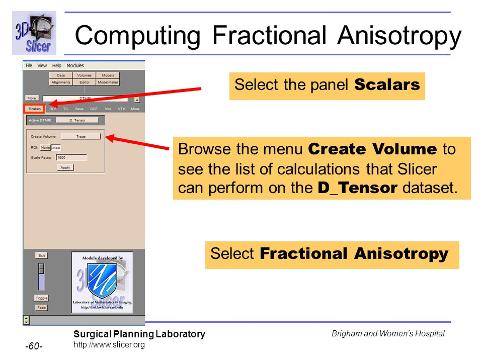 Surgical Planning Laboratory http://www.slicer.org -60- Brigham and Womens Hospital Computing Fractional Anisotropy Select the panel Scalars Browse the menu Create Volume to see the list of calculations that Slicer can perform on the D_Tensor dataset.