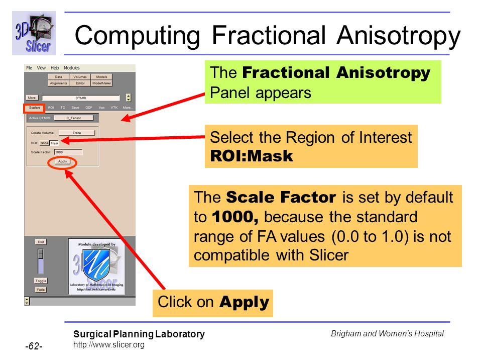 Surgical Planning Laboratory http://www.slicer.org -62- Brigham and Womens Hospital Computing Fractional Anisotropy Click on Apply Select the Region of Interest ROI:Mask The Scale Factor is set by default to 1000, because the standard range of FA values (0.0 to 1.0) is not compatible with Slicer The Fractional Anisotropy Panel appears