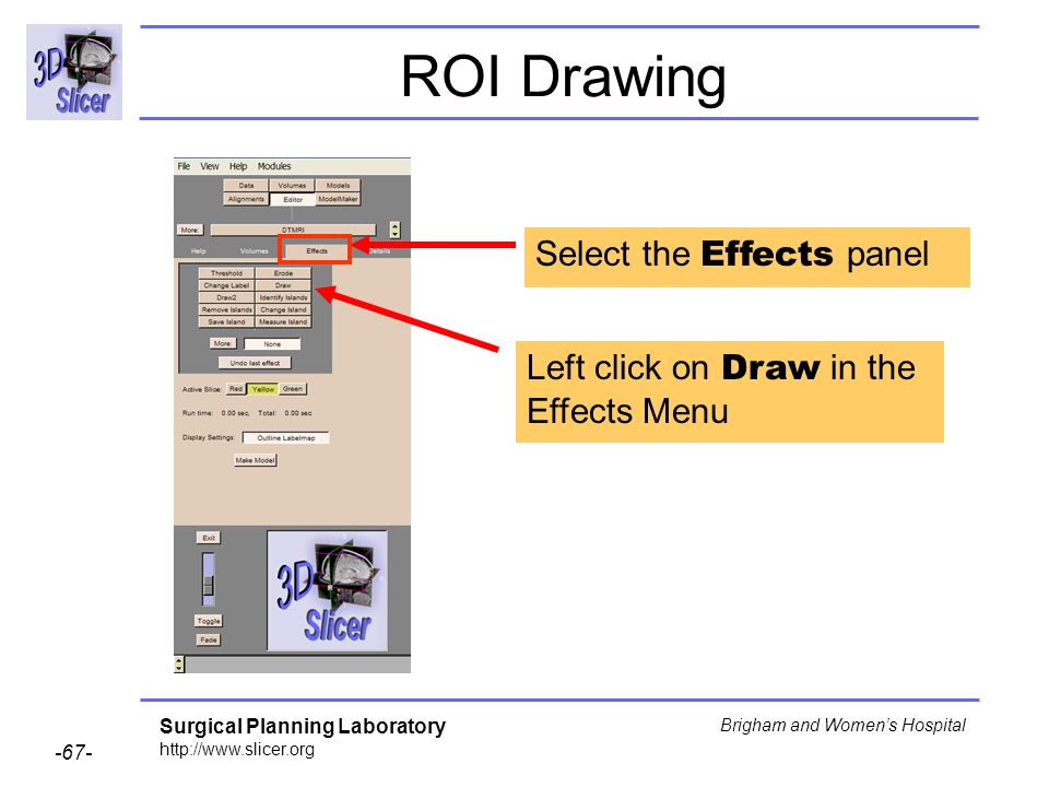 Surgical Planning Laboratory http://www.slicer.org -67- Brigham and Womens Hospital ROI Drawing Select the Effects panel Left click on Draw in the Effects Menu