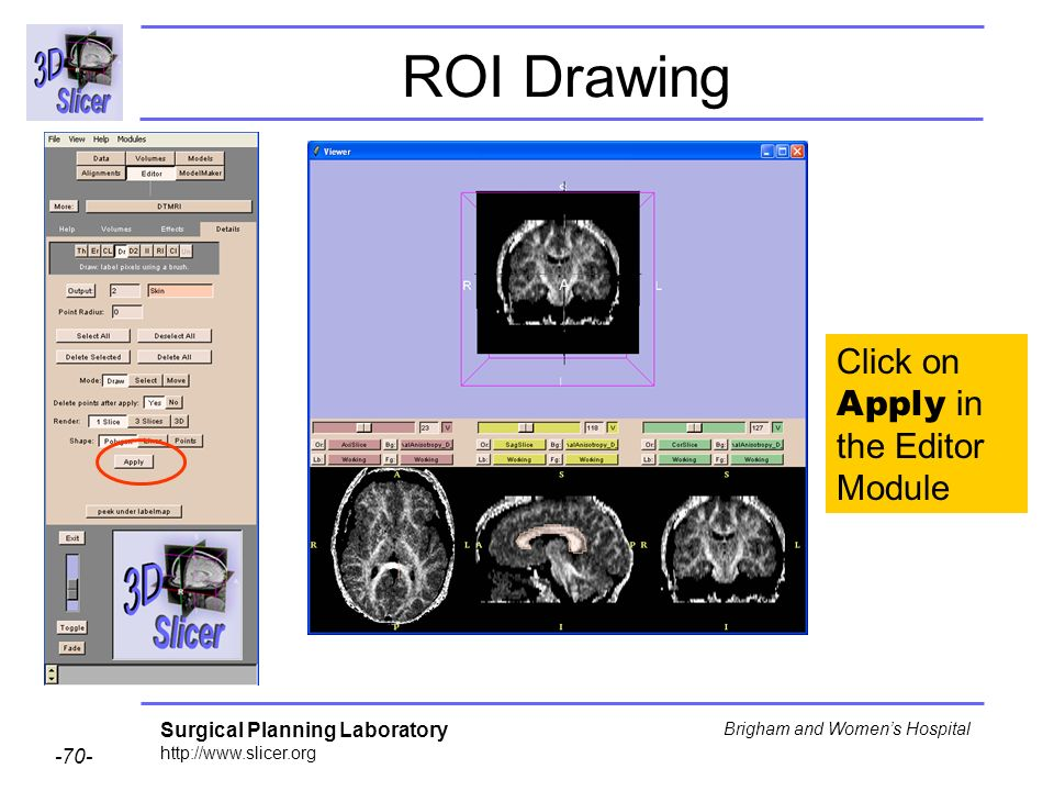 Surgical Planning Laboratory http://www.slicer.org -70- Brigham and Womens Hospital ROI Drawing Click on Apply in the Editor Module