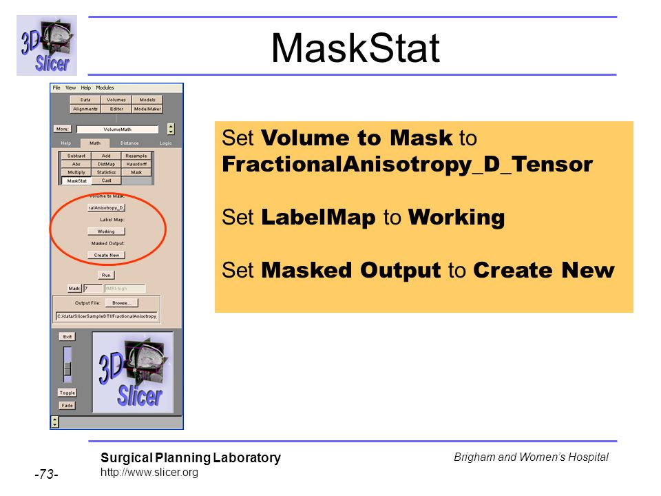 Surgical Planning Laboratory http://www.slicer.org -73- Brigham and Womens Hospital MaskStat Set Volume to Mask to FractionalAnisotropy_D_Tensor Set LabelMap to Working Set Masked Output to Create New