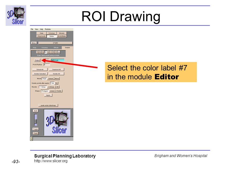 Surgical Planning Laboratory http://www.slicer.org -93- Brigham and Womens Hospital ROI Drawing Select the color label #7 in the module Editor