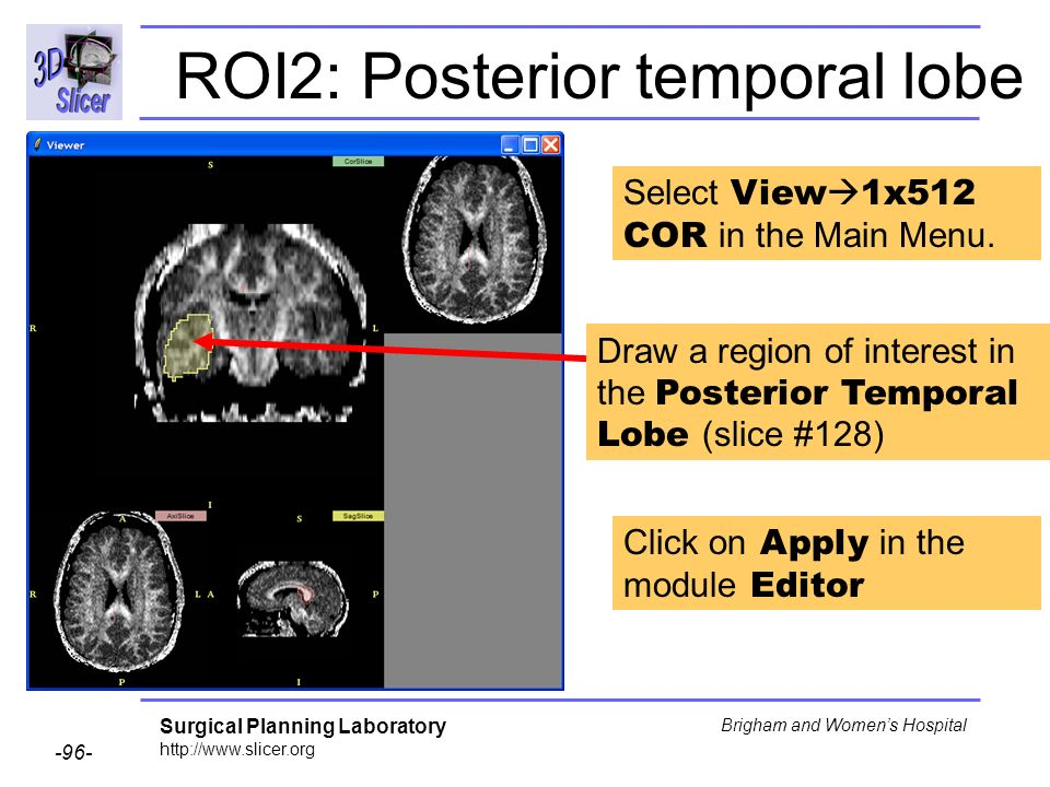 Surgical Planning Laboratory http://www.slicer.org -96- Brigham and Womens Hospital ROI2: Posterior temporal lobe Draw a region of interest in the Posterior Temporal Lobe (slice #128) Select View 1x512 COR in the Main Menu.