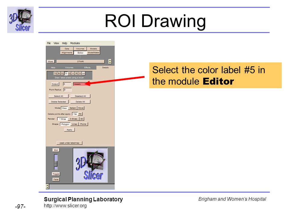 Surgical Planning Laboratory http://www.slicer.org -97- Brigham and Womens Hospital ROI Drawing Select the color label #5 in the module Editor