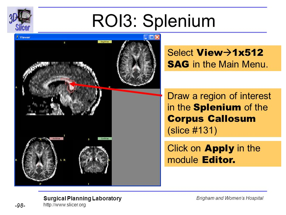 Surgical Planning Laboratory http://www.slicer.org -98- Brigham and Womens Hospital ROI3: Splenium Draw a region of interest in the Splenium of the Corpus Callosum (slice #131) Select View 1x512 SAG in the Main Menu.
