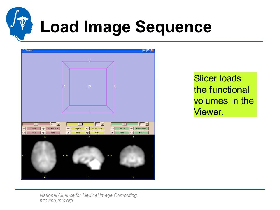 National Alliance for Medical Image Computing http://na-mic.org Load Image Sequence Slicer loads the functional volumes in the Viewer.