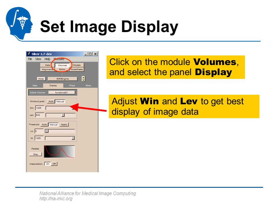 National Alliance for Medical Image Computing http://na-mic.org Set Image Display Click on the module Volumes, and select the panel Display Adjust Win and Lev to get best display of image data