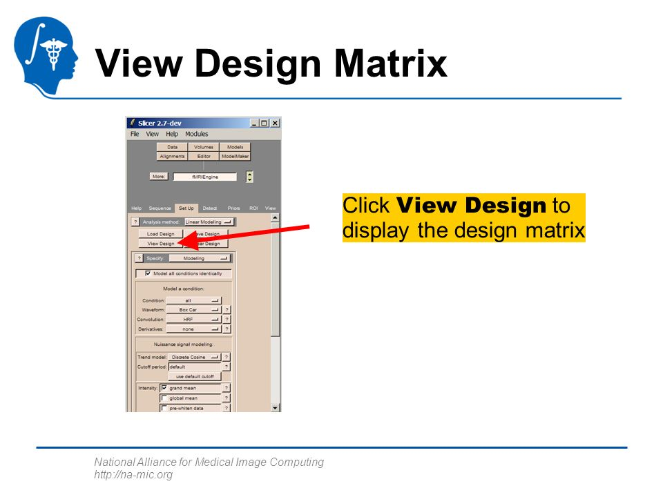 National Alliance for Medical Image Computing http://na-mic.org View Design Matrix Click View Design to display the design matrix