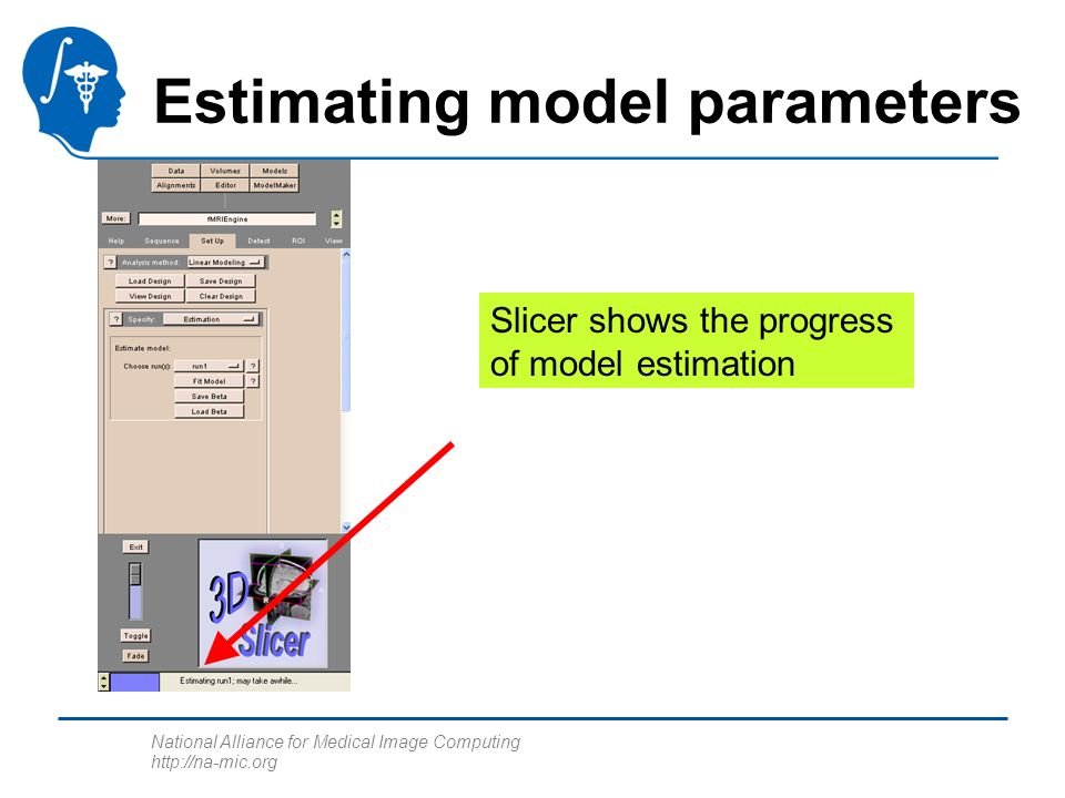 National Alliance for Medical Image Computing http://na-mic.org Estimating model parameters Slicer shows the progress of model estimation