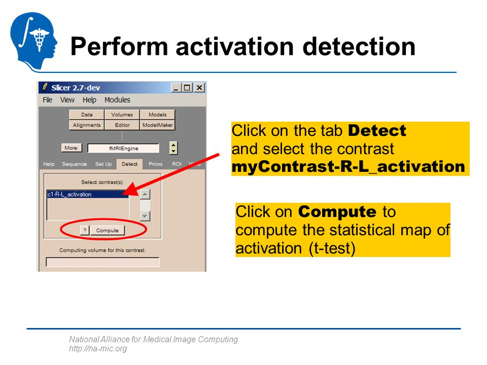 National Alliance for Medical Image Computing http://na-mic.org Perform activation detection Click on the tab Detect and select the contrast myContrast-R-L_activation Click on Compute to compute the statistical map of activation (t-test)