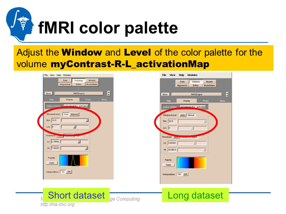 National Alliance for Medical Image Computing http://na-mic.org fMRI color palette Adjust the Window and Level of the color palette for the volume myContrast-R-L_activationMap Short datasetLong dataset