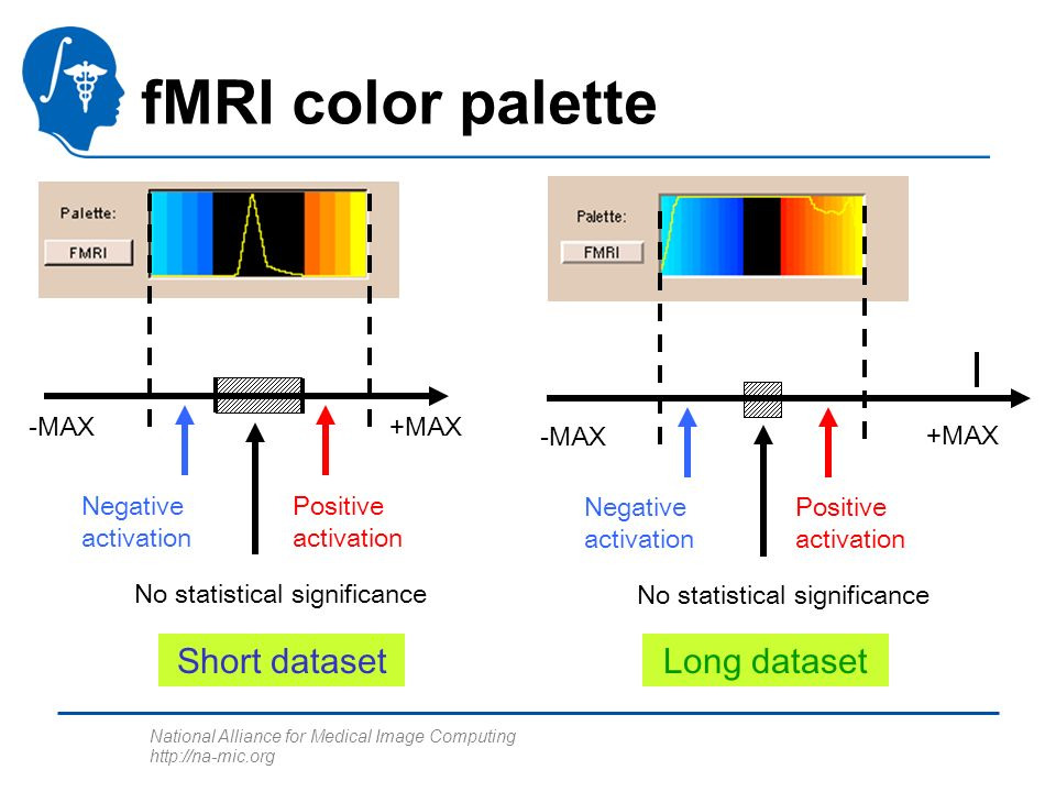 National Alliance for Medical Image Computing http://na-mic.org fMRI color palette -MAX+MAX No statistical significance Positive activation Negative activation -MAX +MAX No statistical significance Positive activation Negative activation Short datasetLong dataset