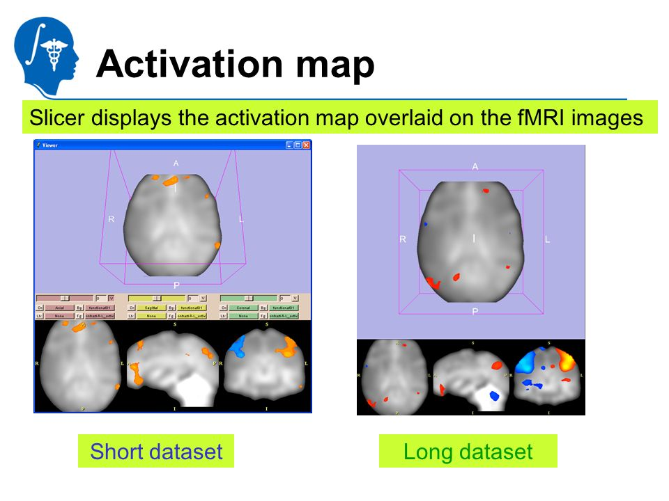 National Alliance for Medical Image Computing http://na-mic.org Activation map Slicer displays the activation map overlaid on the fMRI images Short datasetLong dataset