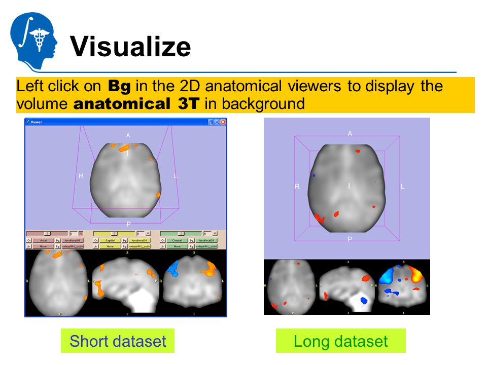 National Alliance for Medical Image Computing http://na-mic.org Visualize Left click on Bg in the 2D anatomical viewers to display the volume anatomical 3T in background Short datasetLong dataset