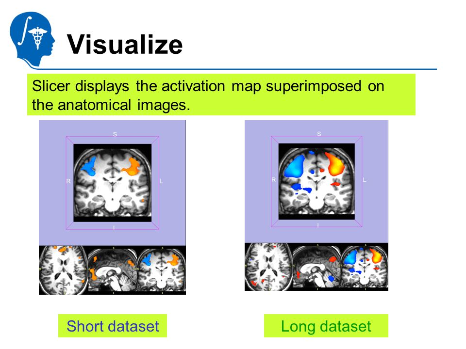 National Alliance for Medical Image Computing http://na-mic.org Visualize Short datasetLong dataset Slicer displays the activation map superimposed on the anatomical images.