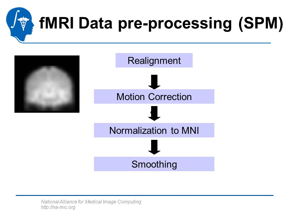 National Alliance for Medical Image Computing http://na-mic.org fMRI Data pre-processing (SPM) c Realignment Motion Correction Normalization to MNI Smoothing
