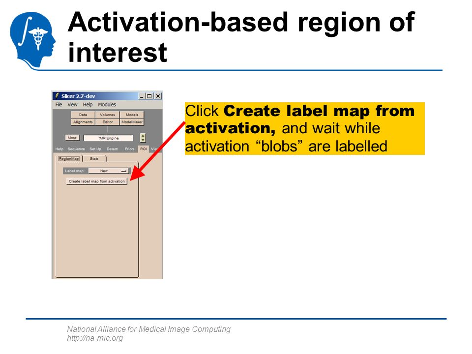 National Alliance for Medical Image Computing http://na-mic.org Activation-based region of interest Click Create label map from activation, and wait while activation blobs are labelled