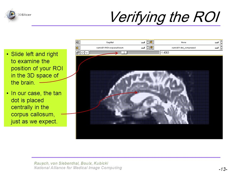 Pujol S, Gollub R -13- National Alliance for Medical Image Computing Verifying the ROI Slide left and right to examine the position of your ROI in the 3D space of the brain.