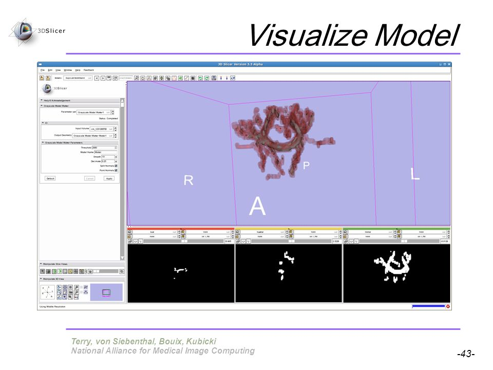 Pujol S, Gollub R -43- National Alliance for Medical Image Computing Visualize Model Terry, von Siebenthal, Bouix, Kubicki
