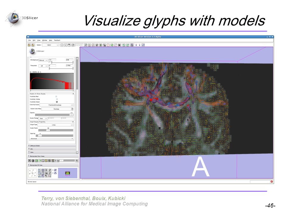 Pujol S, Gollub R -46- National Alliance for Medical Image Computing Visualize glyphs with models Terry, von Siebenthal, Bouix, Kubicki
