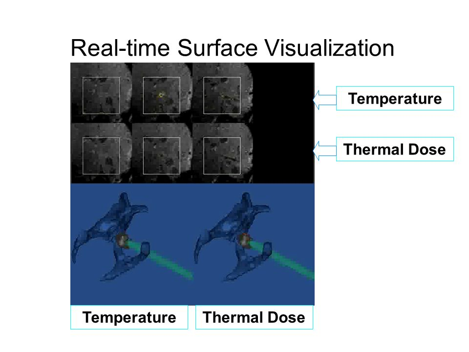 Real-time Surface Visualization movie Temperature Thermal Dose TemperatureThermal Dose