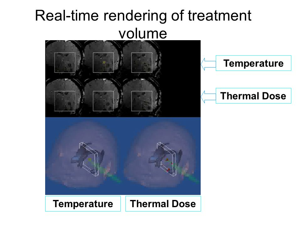 Real-time rendering of treatment volume movie Temperature Thermal Dose TemperatureThermal Dose