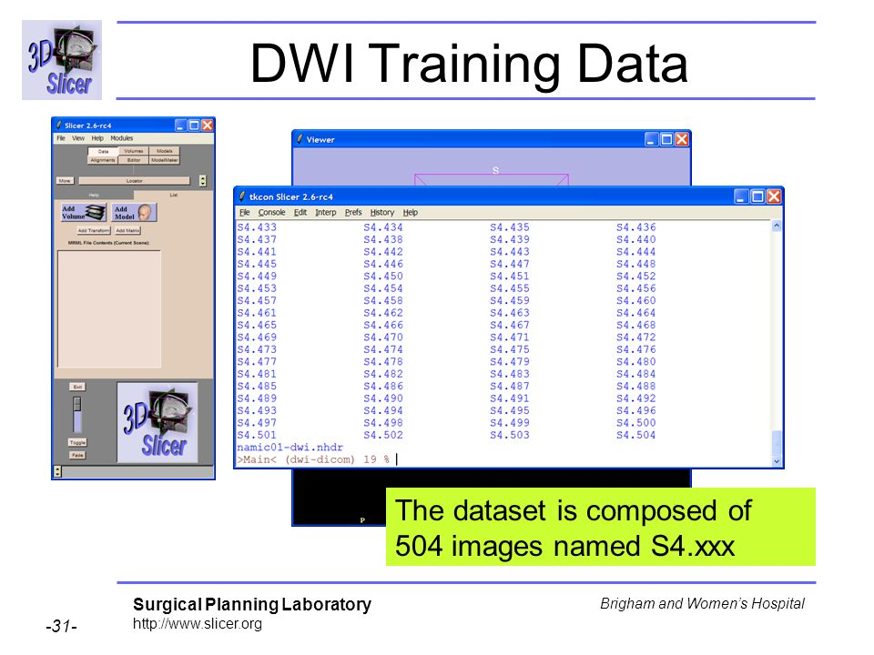Surgical Planning Laboratory http://www.slicer.org -31- Brigham and Womens Hospital DWI Training Data The dataset is composed of 504 images named S4.xxx