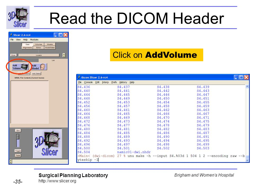 Surgical Planning Laboratory http://www.slicer.org -35- Brigham and Womens Hospital Read the DICOM Header Click on AddVolume