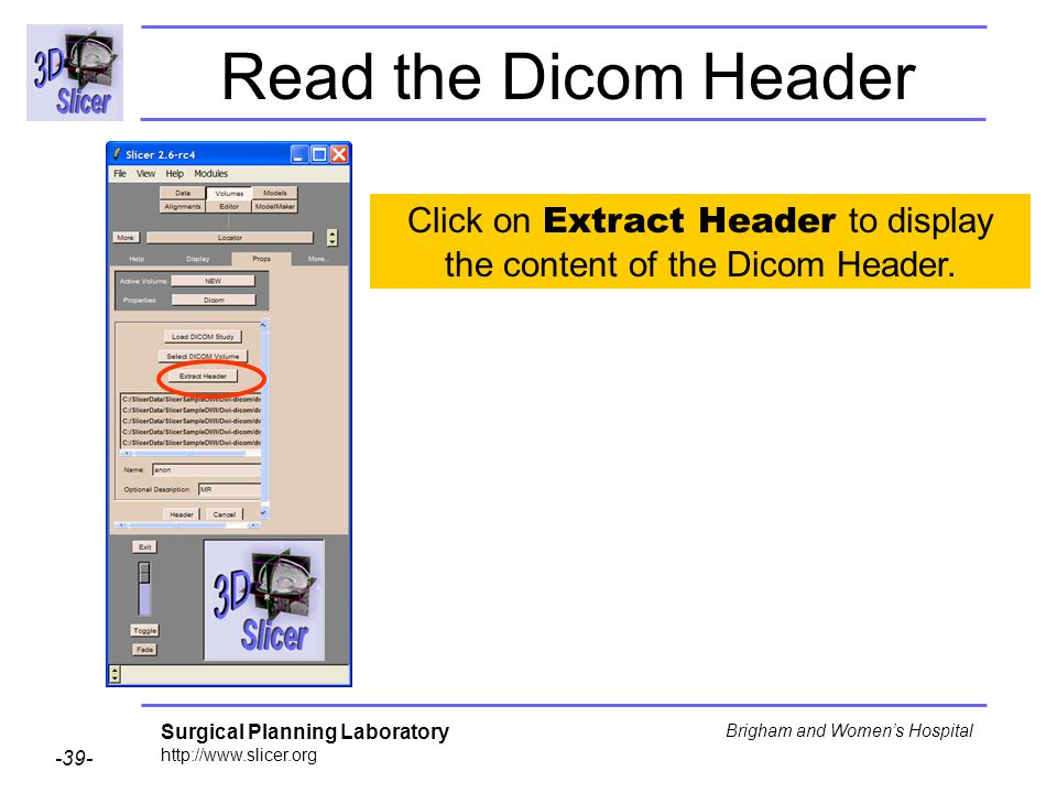 Surgical Planning Laboratory http://www.slicer.org -39- Brigham and Womens Hospital Click on Extract Header to display the content of the Dicom Header.
