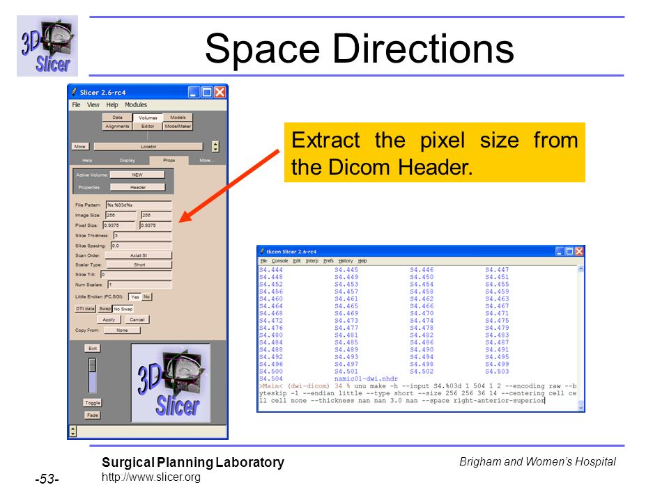 Surgical Planning Laboratory http://www.slicer.org -53- Brigham and Womens Hospital Space Directions Extract the pixel size from the Dicom Header.