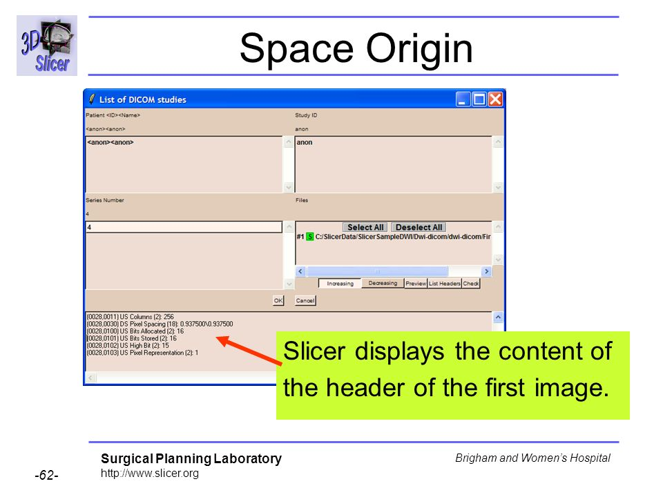 Surgical Planning Laboratory http://www.slicer.org -62- Brigham and Womens Hospital Space Origin Slicer displays the content of the header of the first image.