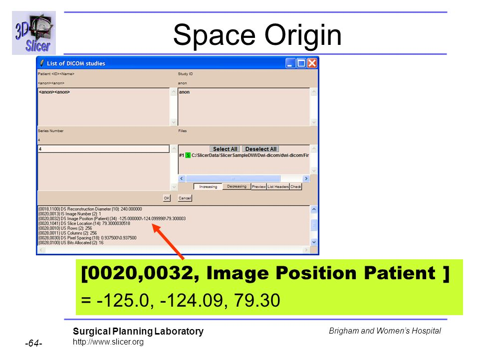 Surgical Planning Laboratory http://www.slicer.org -64- Brigham and Womens Hospital Space Origin [0020,0032, Image Position Patient ] = -125.0, -124.09, 79.30
