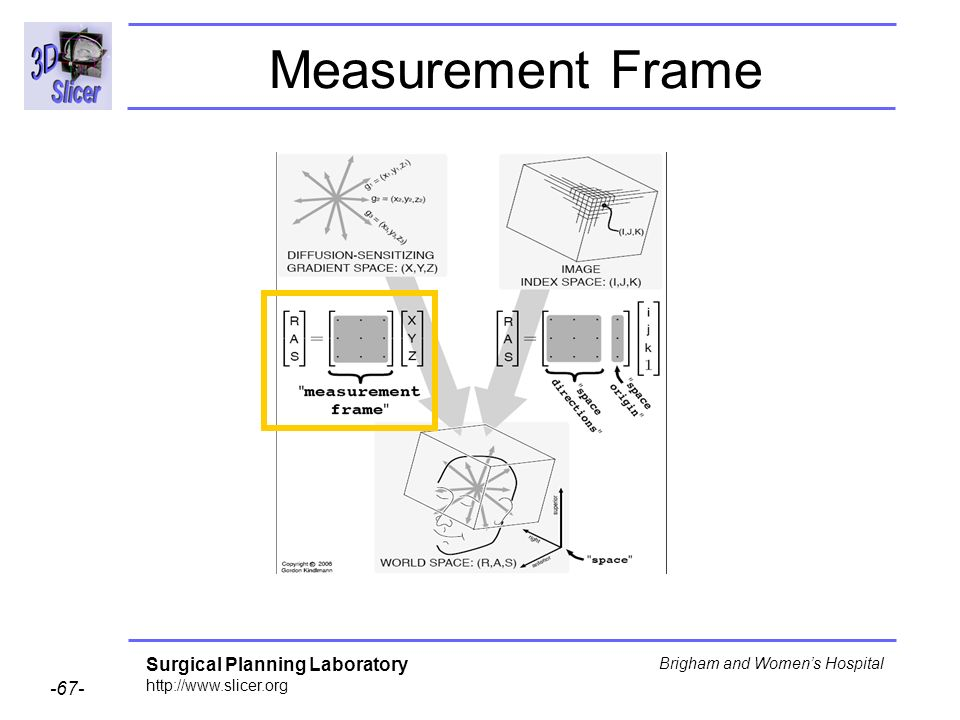 Surgical Planning Laboratory http://www.slicer.org -67- Brigham and Womens Hospital Measurement Frame