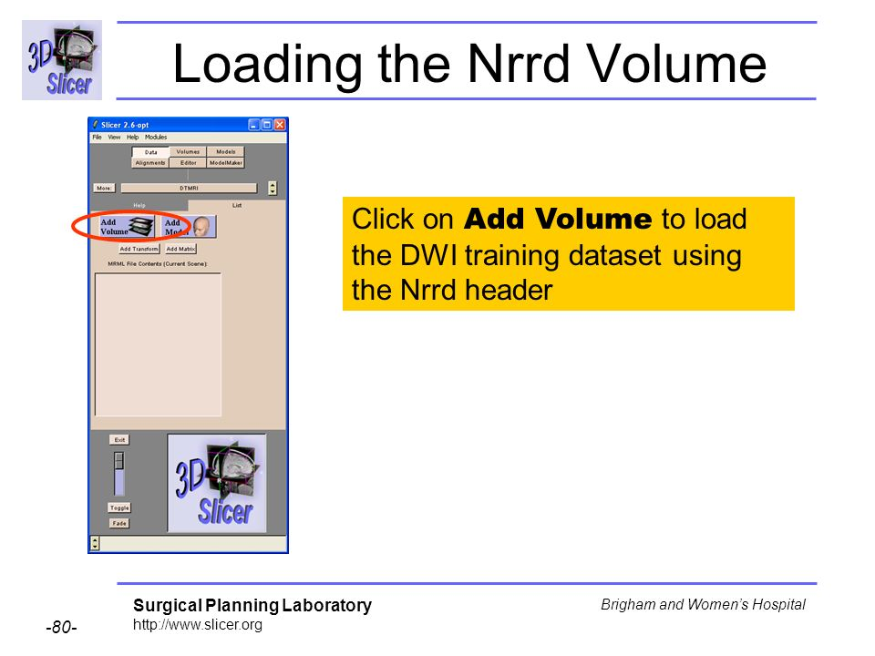 Surgical Planning Laboratory http://www.slicer.org -80- Brigham and Womens Hospital Loading the Nrrd Volume Click on Add Volume to load the DWI training dataset using the Nrrd header