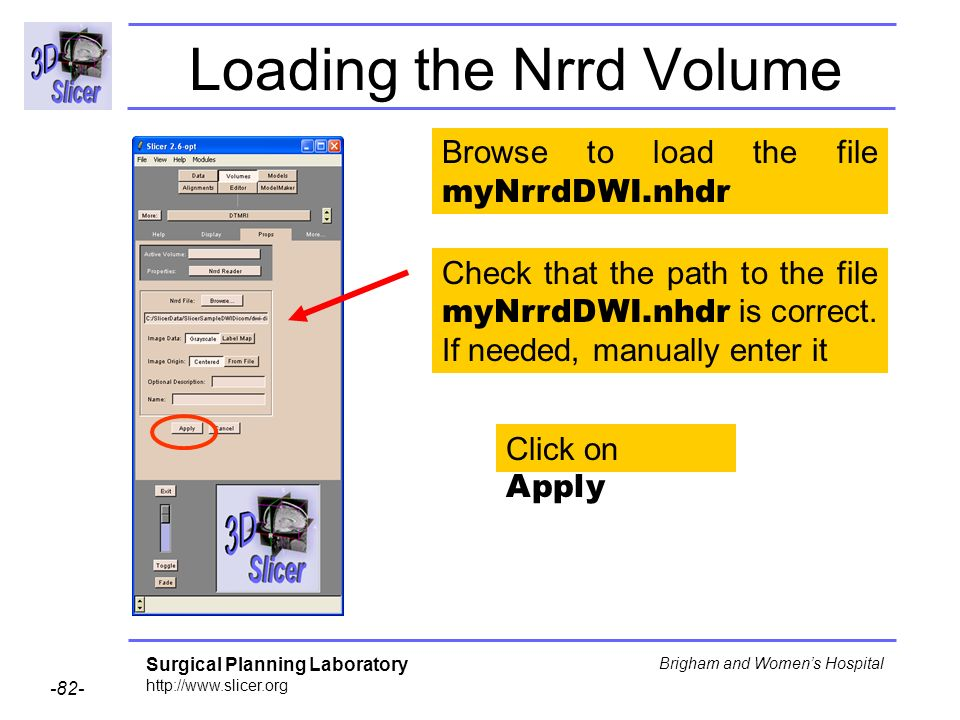 Surgical Planning Laboratory http://www.slicer.org -82- Brigham and Womens Hospital Loading the Nrrd Volume Click on Apply Check that the path to the file myNrrdDWI.nhdr is correct.