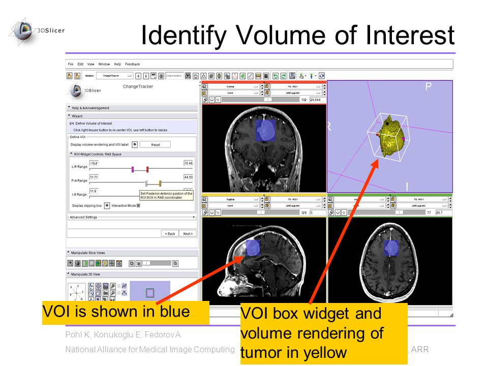 Pohl K, Konukoglu E, Fedorov A National Alliance for Medical Image Computing NA-MIC© 2010, ARR Identify Volume of Interest VOI is shown in blue VOI box widget and volume rendering of tumor in yellow