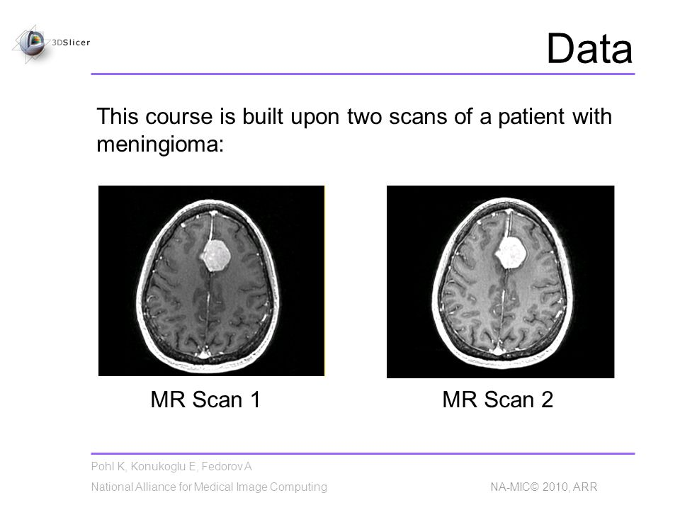 Pohl K, Konukoglu E, Fedorov A National Alliance for Medical Image Computing NA-MIC© 2010, ARR Data This course is built upon two scans of a patient with meningioma: MR Scan 1MR Scan 2