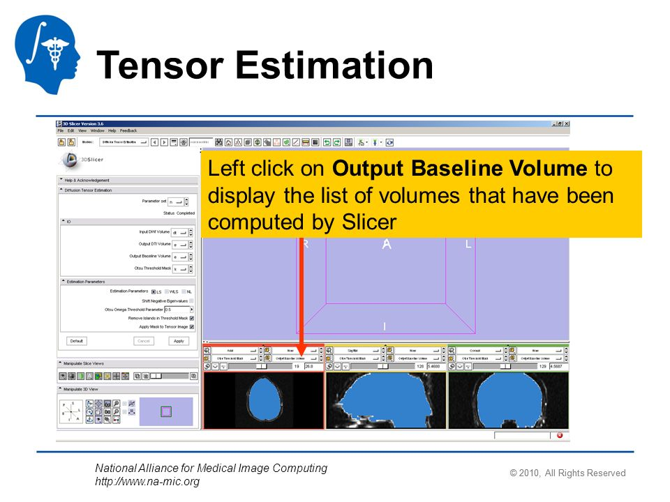 National Alliance for Medical Image Computing http://www.na-mic.org Tensor Estimation Left click on Output Baseline Volume to display the list of volumes that have been computed by Slicer © 2010, All Rights Reserved