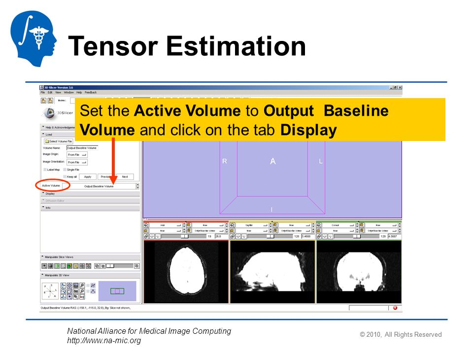 National Alliance for Medical Image Computing http://www.na-mic.org Tensor Estimation Set the Active Volume to Output Baseline Volume and click on the tab Display © 2010, All Rights Reserved