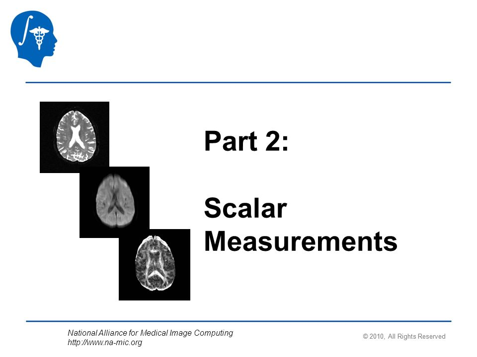 National Alliance for Medical Image Computing http://www.na-mic.org Part 2: Scalar Measurements © 2010, All Rights Reserved