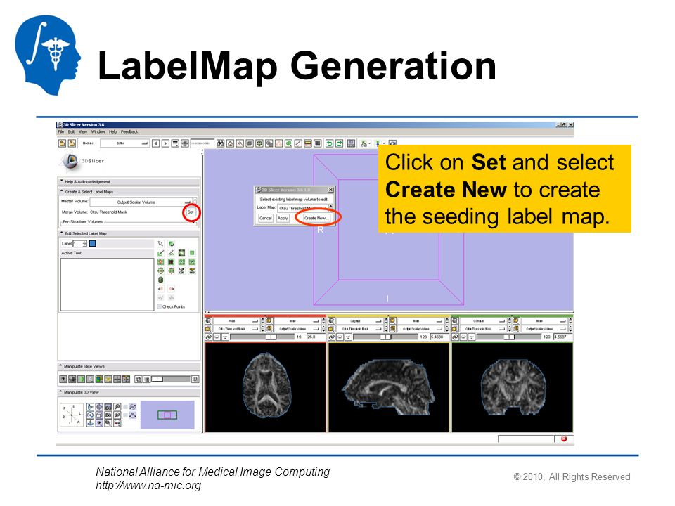 National Alliance for Medical Image Computing http://www.na-mic.org Click on Set and select Create New to create the seeding label map.
