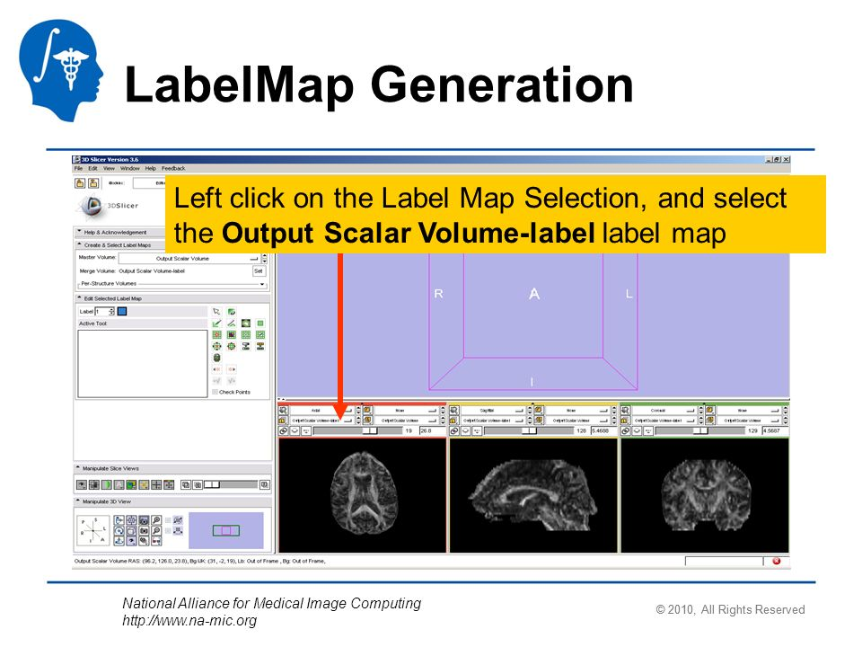 National Alliance for Medical Image Computing http://www.na-mic.org Left click on the Label Map Selection, and select the Output Scalar Volume-label label map LabelMap Generation © 2010, All Rights Reserved