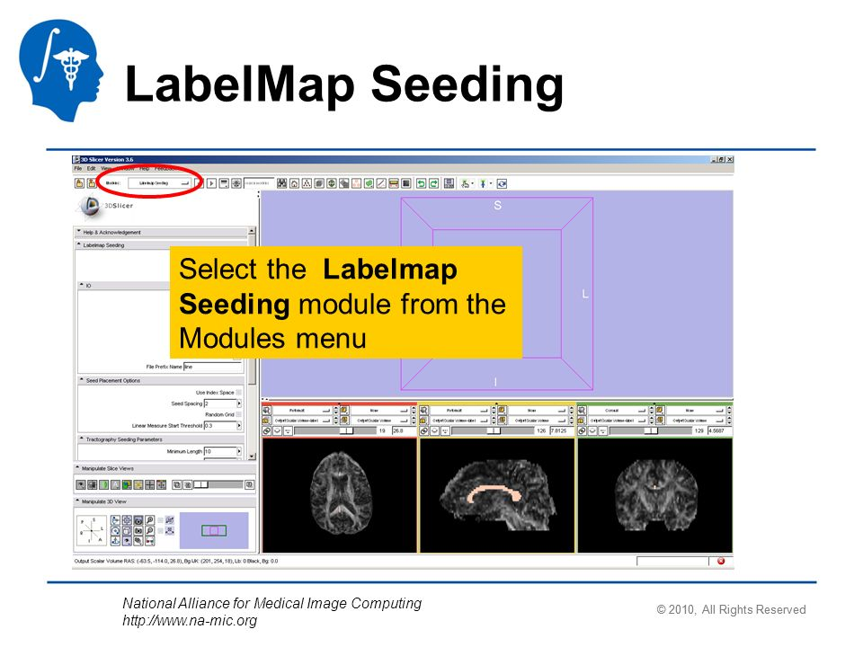 National Alliance for Medical Image Computing http://www.na-mic.org LabelMap Seeding Select the Labelmap Seeding module from the Modules menu © 2010, All Rights Reserved